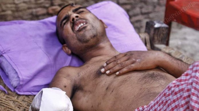 Sodomy-accused UP man arrested 4 months after his arm was 'chopped off for being a Muslim'